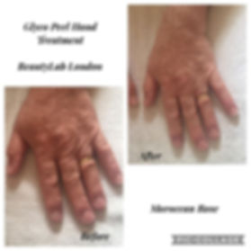 Done the new _Glyco Peel Hand Treatment