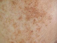 Problem skincare and health concept. Clo