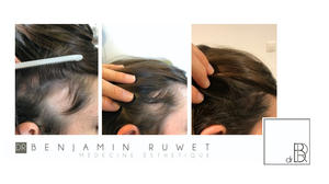 Mesothérapie du cuir chevelu HAIRCAIRE