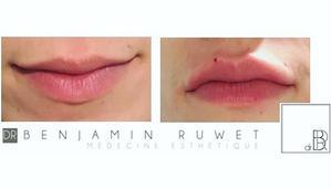 Augmentation volume lèvres