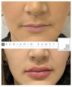 Augmentation  volume des lèvres