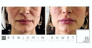 Restauration des volumes du visage, correction creux cernes, augmentation volume lèvres