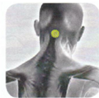 Disc Therapy | Disc Placement | Head Pain | GV-16