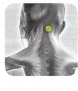 Disc Therapy | Disc Placement | Lower Back | Head Pain | BL-10