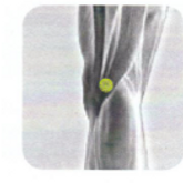 Disc Therapy | Disc Placement | Knee Pain | K-10