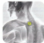 Disc Therapy | Disc Placement | Shoulder Pain | TW-15