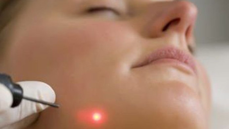 Extracción de verrugas por electrocauterización
