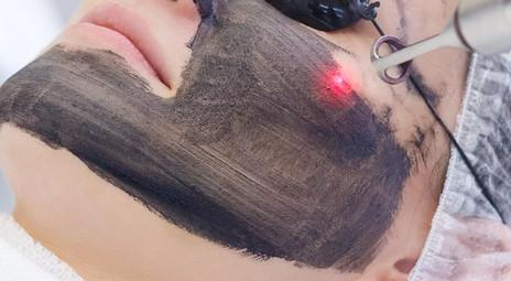 Beneficios de láser black peel