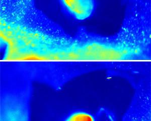 [News Release]Lighting up lymph nodes