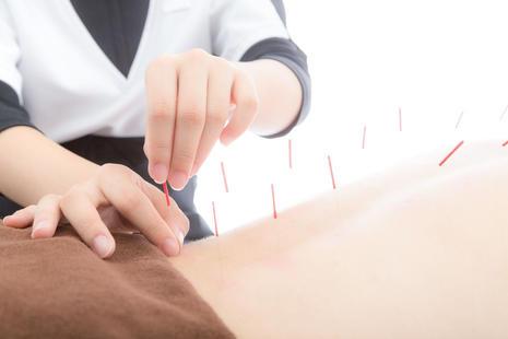 背面鍼灸治療