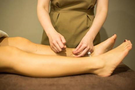 表面鍼灸治療
