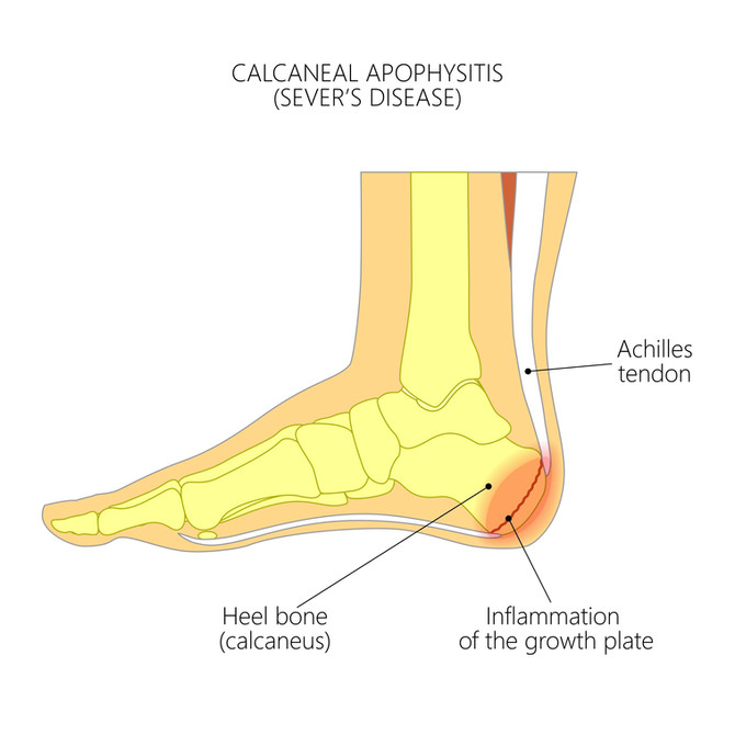 Question of the Month: Heel Pain after sports in a 10 year old basketball player...
