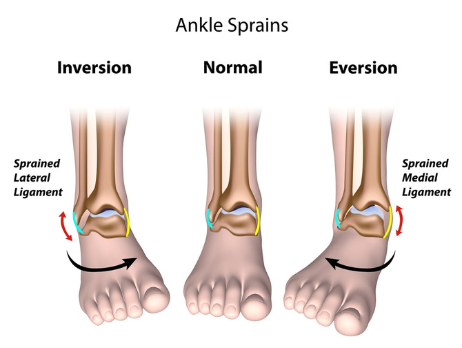 Avoiding Ankle Sprains