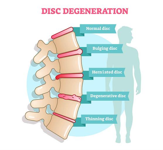 Herniated Disc.jpg