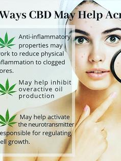 3 Ways CBD May Help Acne