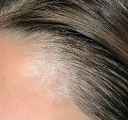 hairline