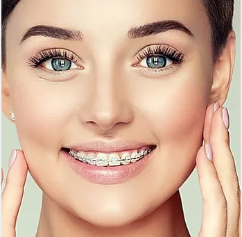 How to Prevent and Maintain your Dental Alignment to Avoid Teeth Shifting
