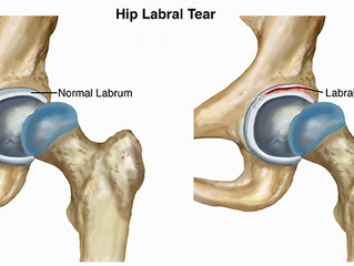 I have a labral tear in my hip...do I need surgery?
