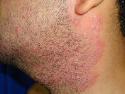 barbae 8.jpg