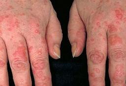 urticaria 7.jpg