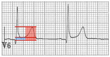 pericarditis vs BER 2.png