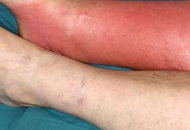 cellulitis 3.jpg