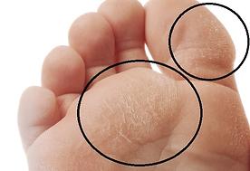 diabetic foot 1.png