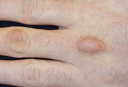 knuckle pads 3.jpg