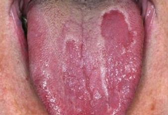 geog-tongue 1.jpg