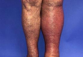 cellulitis 1.JPG