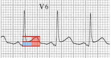 pericarditis vs BER 4.png