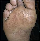 malodorous feet