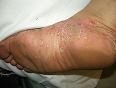 palmoplantar psoriasis 4.jpg