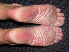 palmoplantar psoriasis 1.jpg