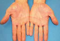palmoplantar psoriasis 2.jpg