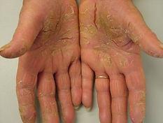 palmoplantar psoriasis 3.jpg