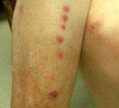 bedbug 11.jpg