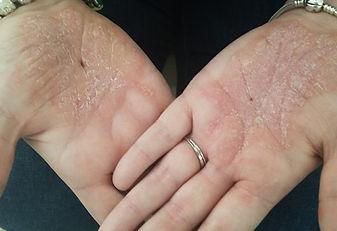 palmoplantar psoriasis.jpg