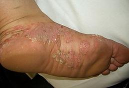 palmoplantar psoriasis 5.jpg