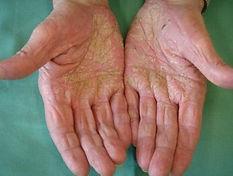 palmoplantar psoriasis 6.jpg