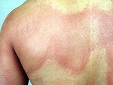 urticaria 4.jpg