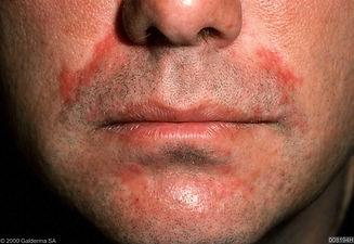 25. Perioral dermatitis.jpg