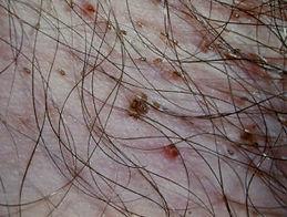 lice pubic 1.jpg