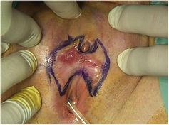 carcinoma cuniculatum 3.jpg