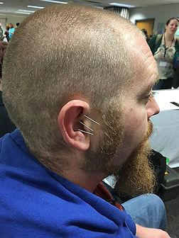 Acupuncture demo self care fair 2798.jpg