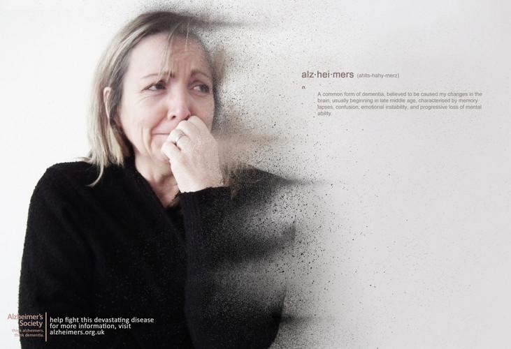 Alzheimers 2