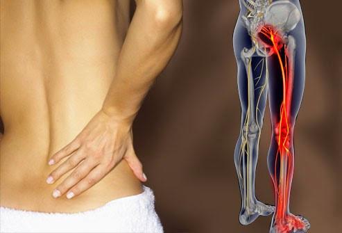 Dolor en el nervio ciático