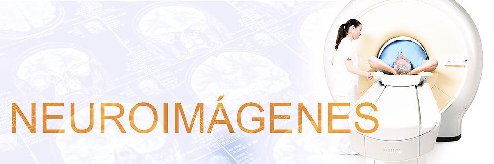 neuroimagenes en imaxe, neurología, resonncia magnética, RM, TC, tomografía