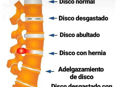 Lesiones del disco intervertebral