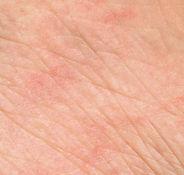 marked_sensitized_skin_Dibimilano_800x80